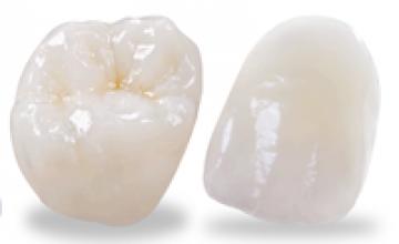Răng sứ E-Max zir cad